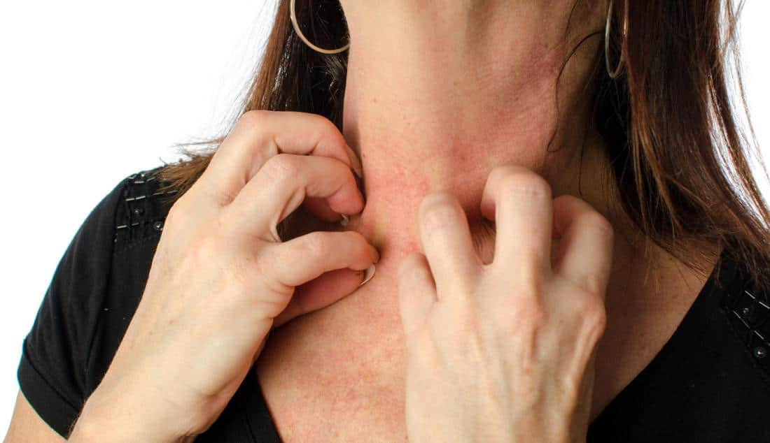 El estrés puede causar problemas en la piel como herpes, eccemas, acné, urticarias